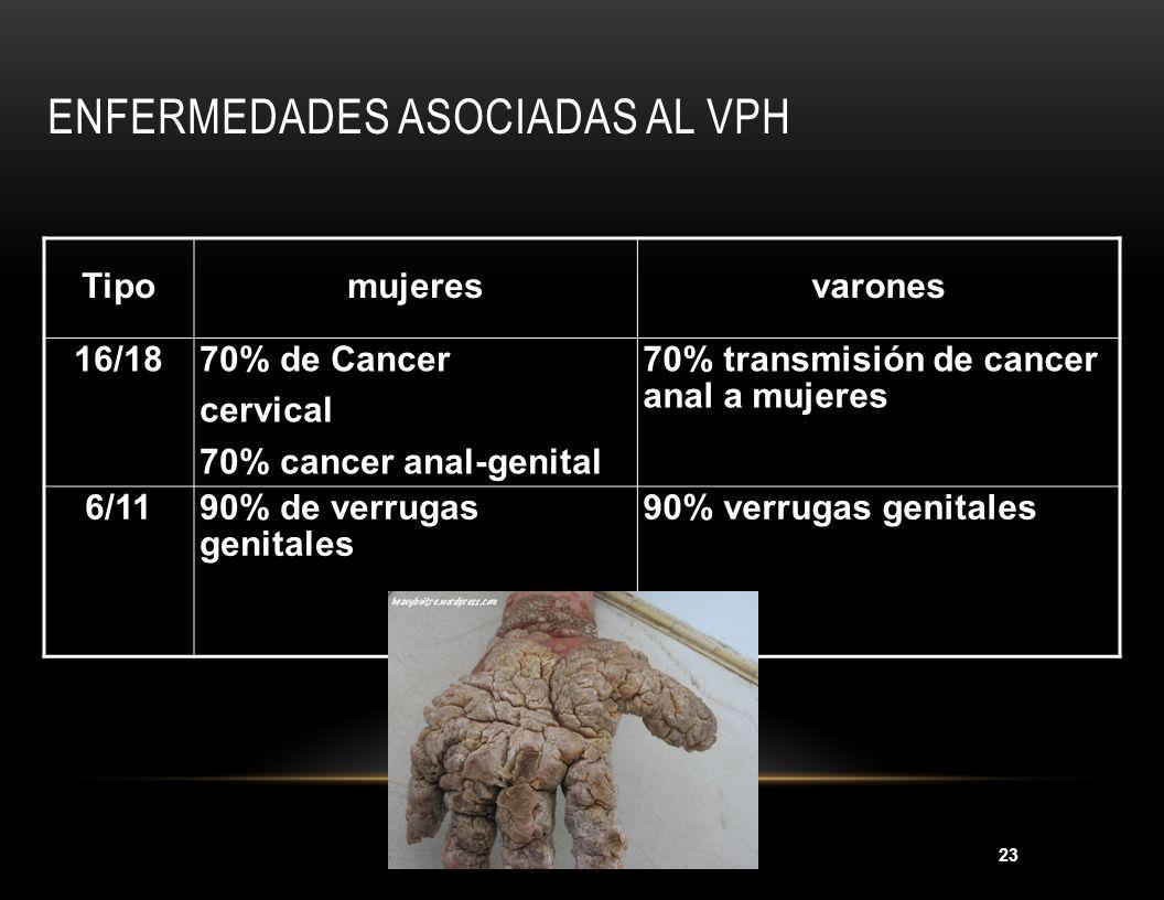 23 Tipomujeresvarones 16/1870% de Cancer cervical 70% cancer anal-genital 70% transmisión de cancer anal a mujeres 6/1190% de verrugas genitales 90% v