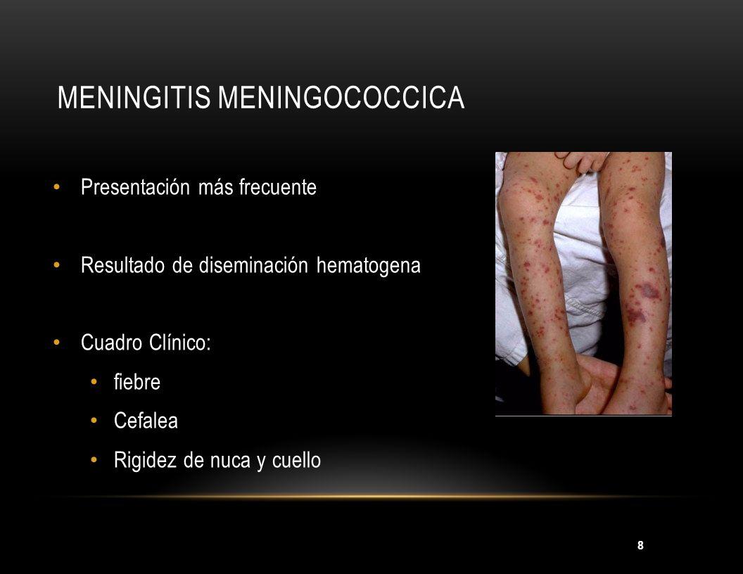 8 MENINGITIS MENINGOCOCCICA Presentación más frecuente Resultado de diseminación hematogena Cuadro Clínico: fiebre Cefalea Rigidez de nuca y cuello
