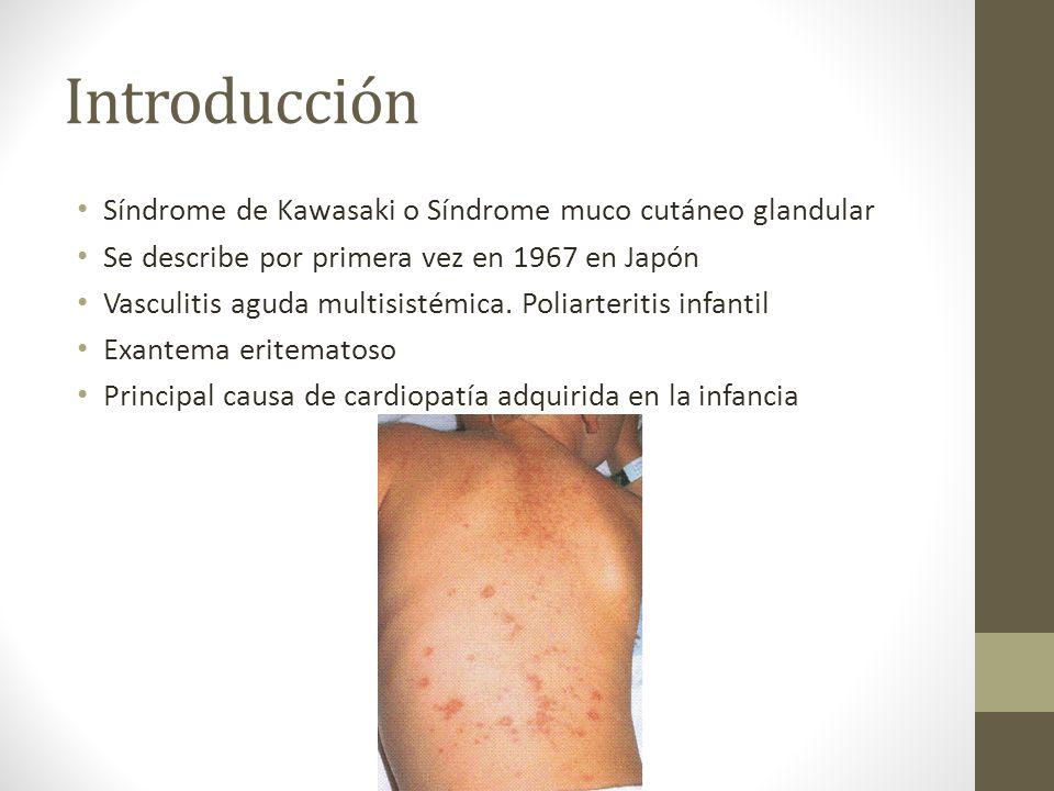 Introducción Síndrome de Kawasaki o Síndrome muco cutáneo glandular Se describe por primera vez en 1967 en Japón Vasculitis aguda multisistémica. Poli