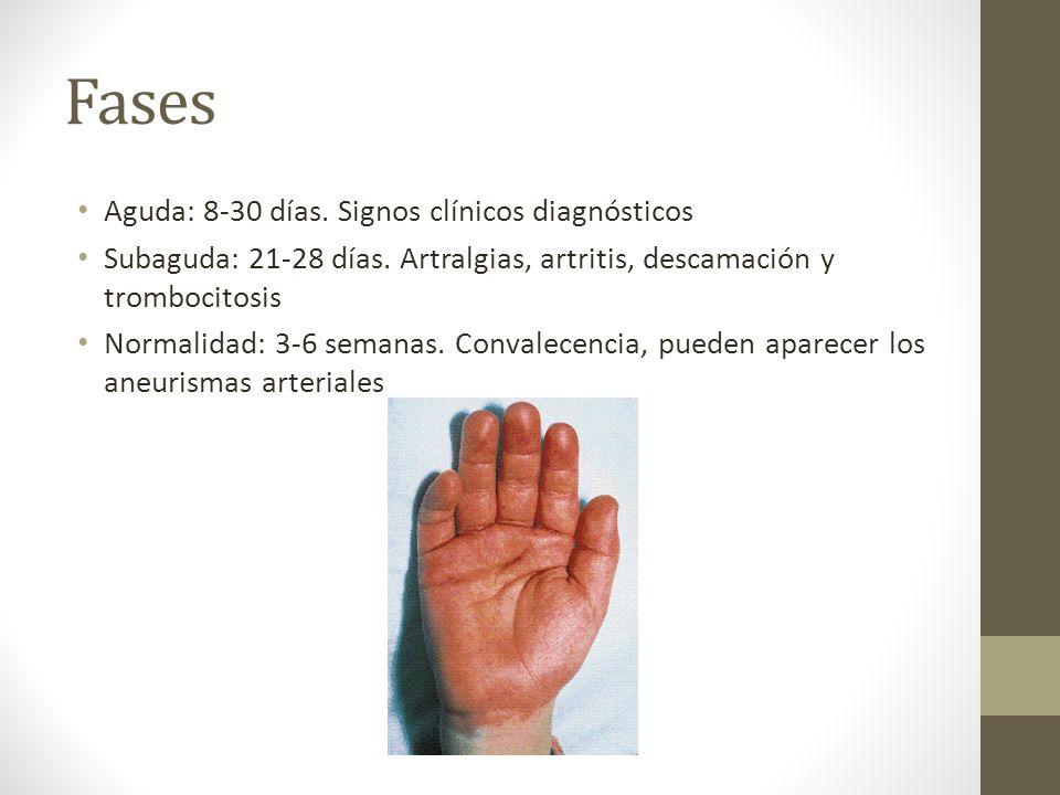 Fases Aguda: 8-30 días. Signos clínicos diagnósticos Subaguda: 21-28 días. Artralgias, artritis, descamación y trombocitosis Normalidad: 3-6 semanas.