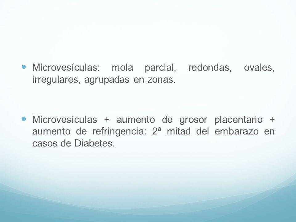 Microvesículas: mola parcial, redondas, ovales, irregulares, agrupadas en zonas.