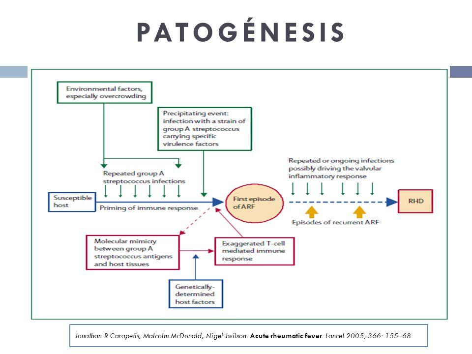 PATOGÉNESIS Jonathan R Carapetis, Malcolm McDonald, Nigel Jwilson. Acute rheumatic fever. Lancet 2005; 366: 155–68