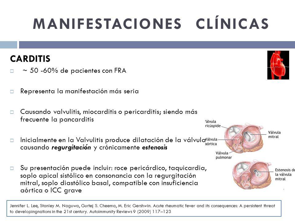 MANIFESTACIONES CLÍNICAS CARDITIS ~ 50 -60% de pacientes con FRA Representa la manifestación más seria Causando valvulitis, miocarditis o pericarditis