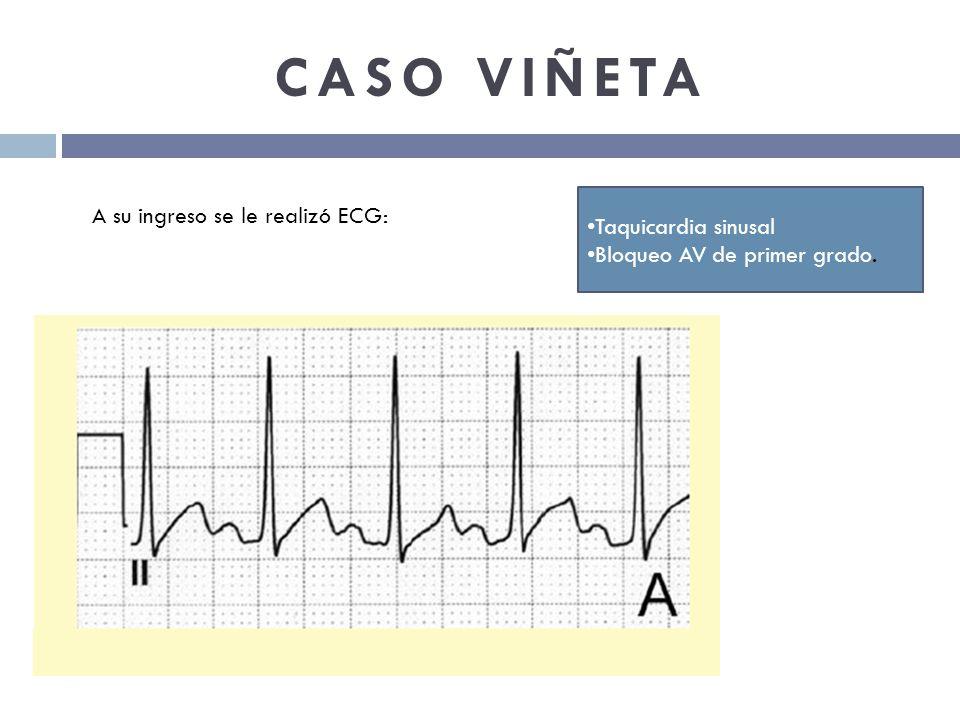 CASO VIÑETA Taquicardia sinusal Bloqueo AV de primer grado. A su ingreso se le realizó ECG:
