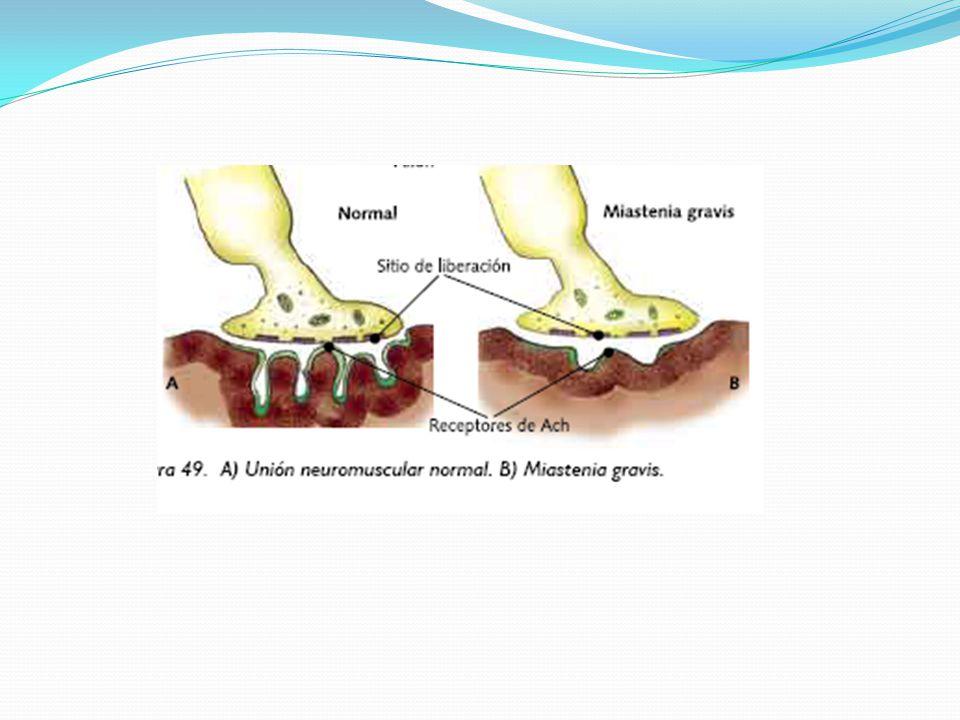Síndromes miasteniformes D- penicilamina produce sindrome autoinmune en el 1% de los casos.