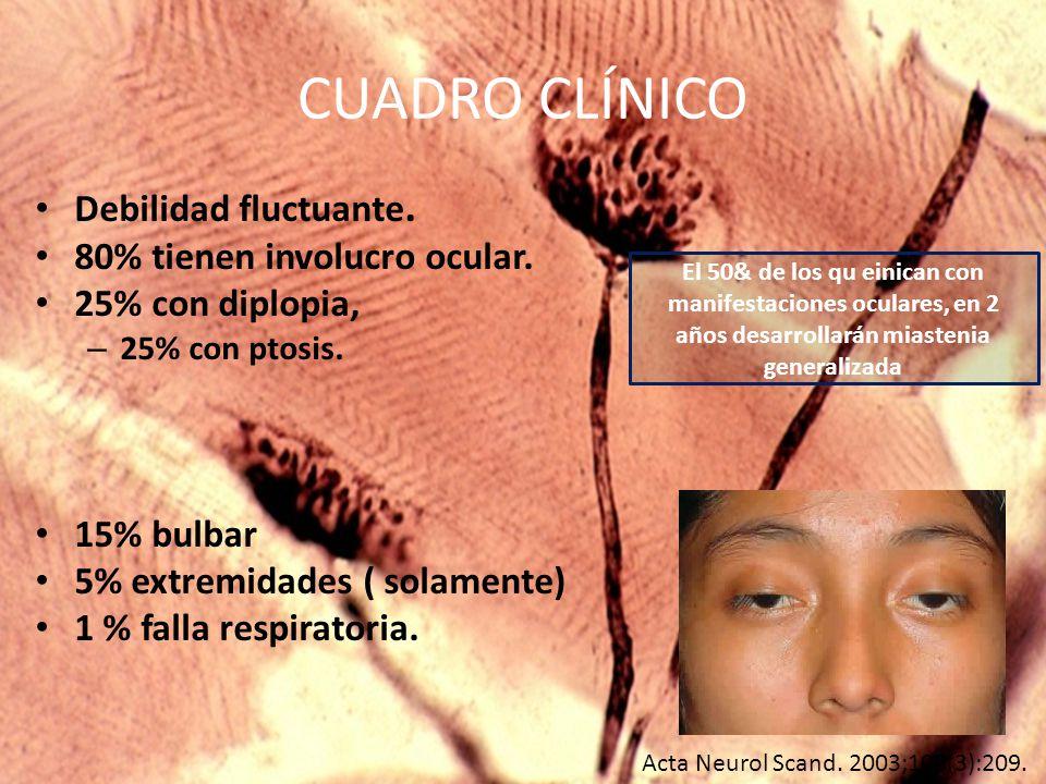 CUADRO CLÍNICO Debilidad fluctuante.80% tienen involucro ocular.