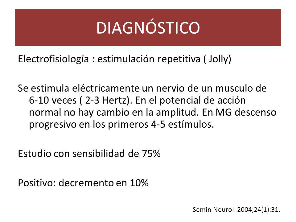 DIAGNÓSTICO Electrofisiología : estimulación repetitiva ( Jolly) Se estimula eléctricamente un nervio de un musculo de 6-10 veces ( 2-3 Hertz).