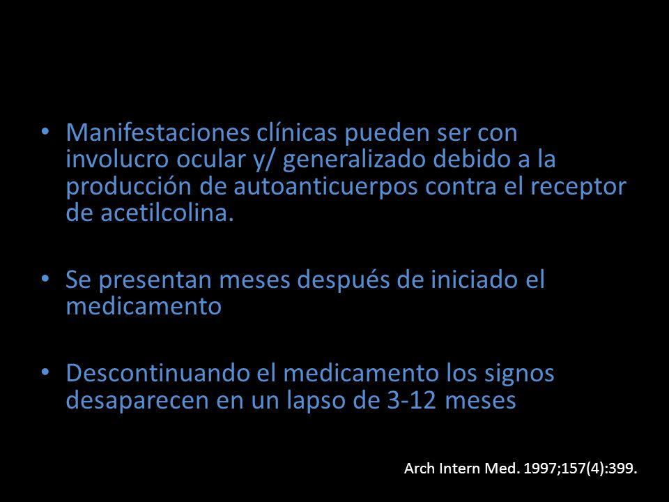Manifestaciones clínicas pueden ser con involucro ocular y/ generalizado debido a la producción de autoanticuerpos contra el receptor de acetilcolina.