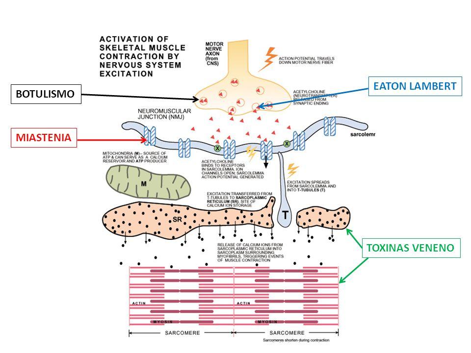 Medicamentos que tienen impacto negativo en pacientes con diagnostico d eMG: 1.Altas dosis de prednisona 2.Sobredosis de acetilcolinesterasa 3.Anestésicos y relajantes musculares perioperatorios Arch Intern Med.