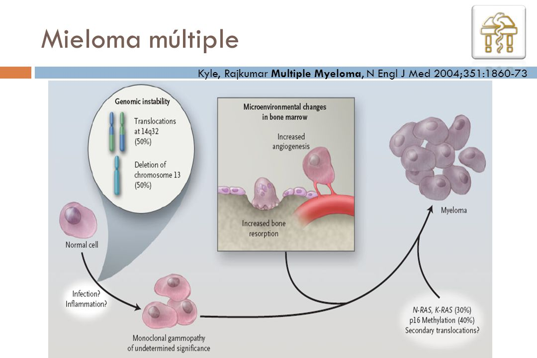 Mieloma múltiple Kyle, Rajkumar Multiple Myeloma, N Engl J Med 2004;351:1860-73