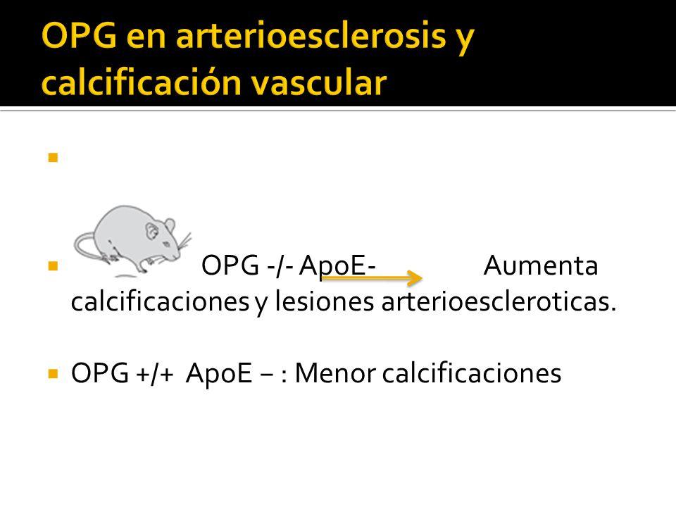OPG -/- ApoE- Aumenta calcificaciones y lesiones arterioescleroticas. OPG +/+ ApoE : Menor calcificaciones