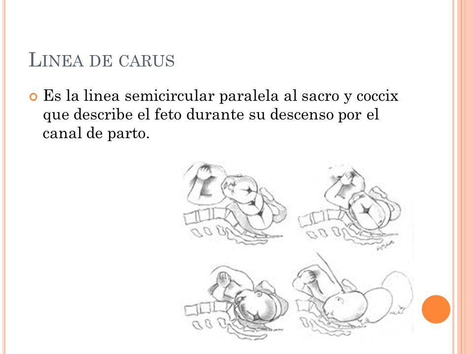 L INEA DE CARUS Es la linea semicircular paralela al sacro y coccix que describe el feto durante su descenso por el canal de parto.
