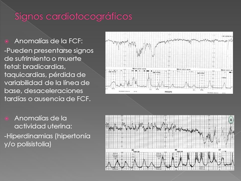 Anomalías de la FCF: -Pueden presentarse signos de sufrimiento o muerte fetal: bradicardias, taquicardias, pérdida de variabilidad de la línea de base