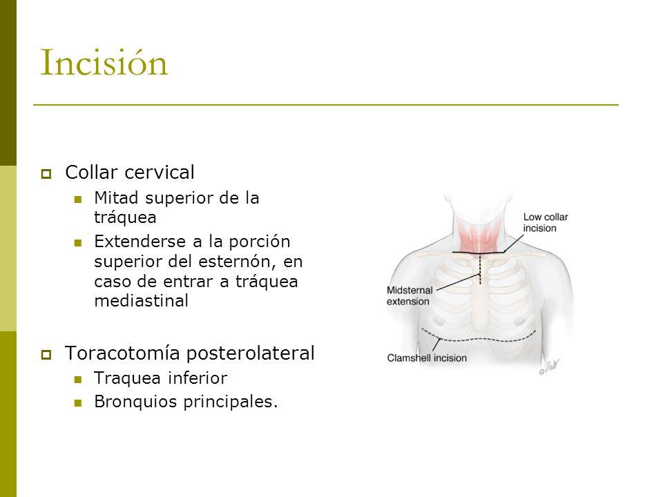 Incisión Collar cervical Mitad superior de la tráquea Extenderse a la porción superior del esternón, en caso de entrar a tráquea mediastinal Toracotomía posterolateral Traquea inferior Bronquios principales.