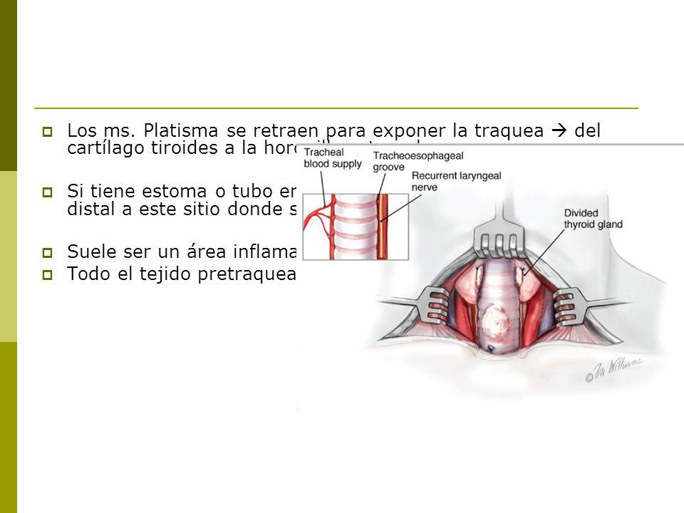 Los ms.Platisma se retraen para exponer la traquea del cartílago tiroides a la horquilla esternal.