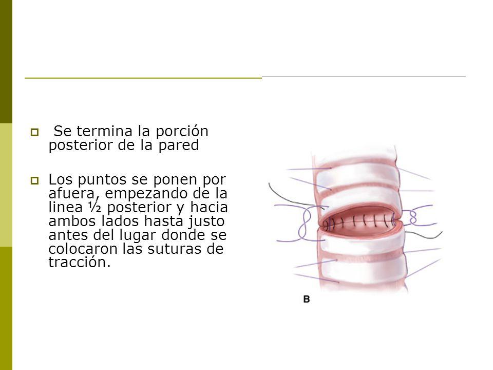 Se termina la porción posterior de la pared Los puntos se ponen por afuera, empezando de la linea ½ posterior y hacia ambos lados hasta justo antes del lugar donde se colocaron las suturas de tracción.