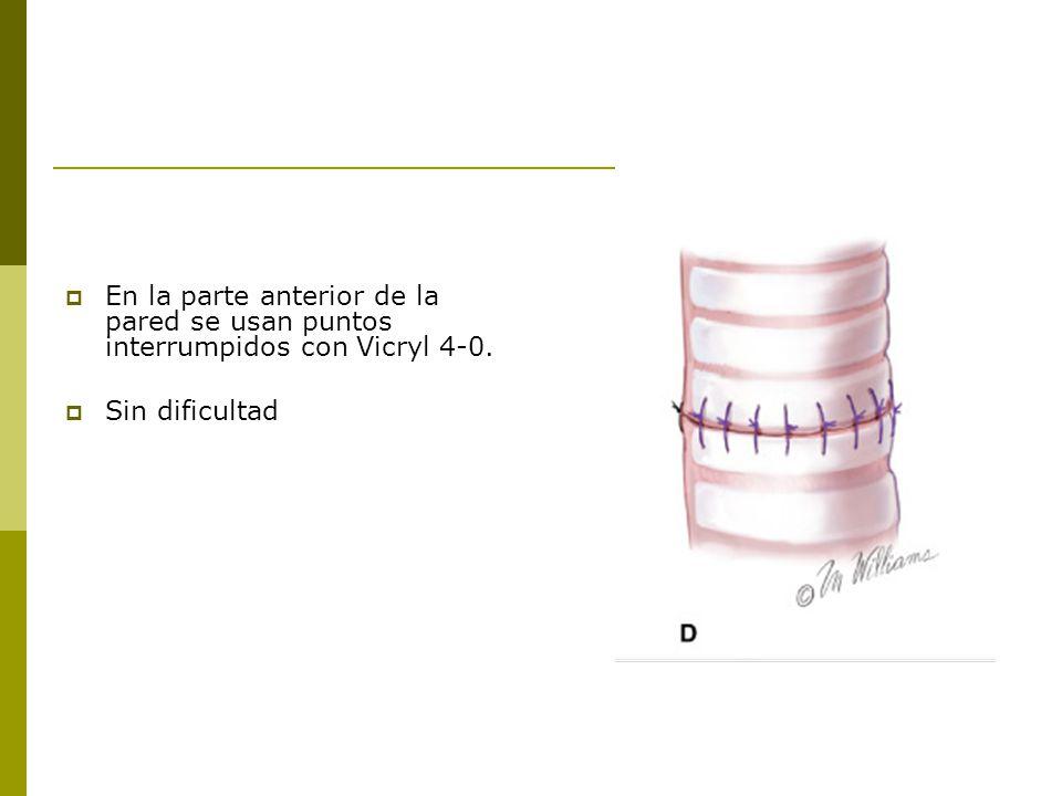 En la parte anterior de la pared se usan puntos interrumpidos con Vicryl 4-0. Sin dificultad