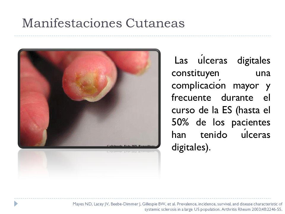 Las ulceras digitales constituyen una complicacion mayor y frecuente durante el curso de la ES (hasta el 50% de los pacientes han tenido ulceras digit