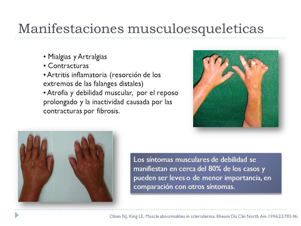 Manifestaciones musculoesqueleticas Mialgias y Artralgias Contracturas Artritis inflamatoria (resorción de los extremos de las falanges distales) Atro