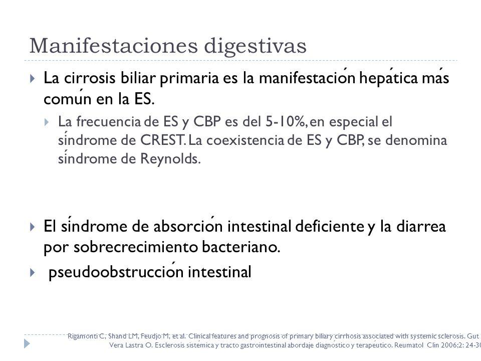 Manifestaciones digestivas La cirrosis biliar primaria es la manifestacion hepatica mas comun en la ES. La frecuencia de ES y CBP es del 5-10%, en esp
