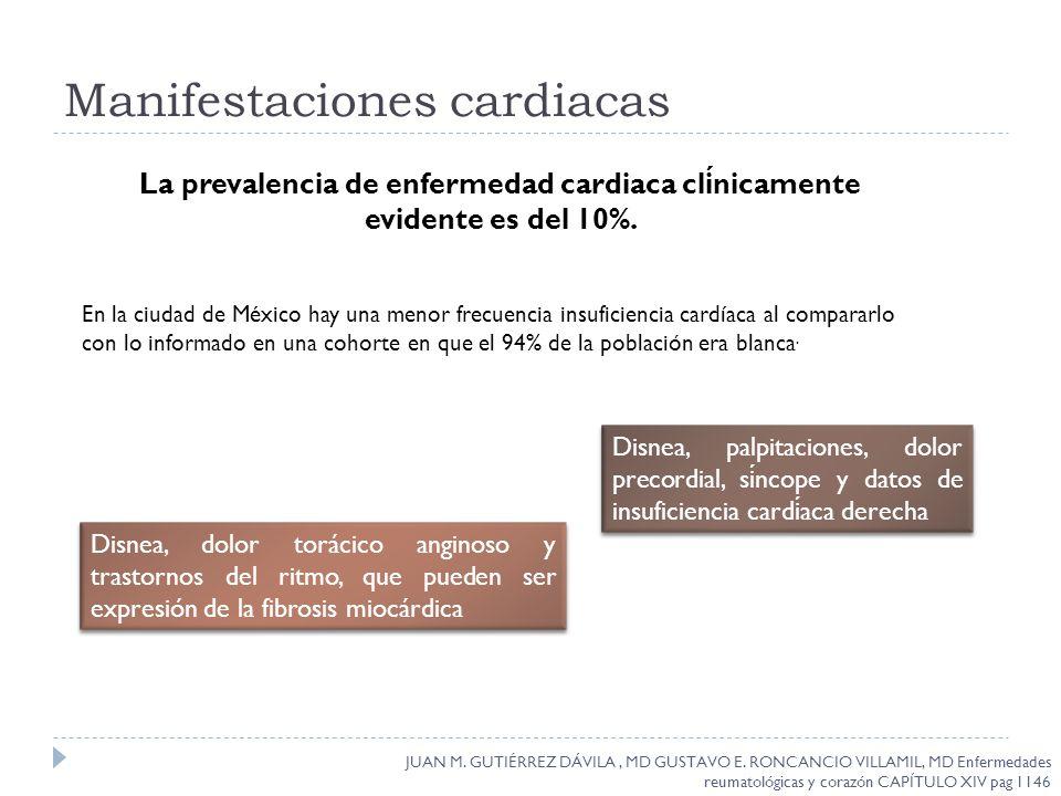 Manifestaciones cardiacas JUAN M. GUTIÉRREZ DÁVILA, MD GUSTAVO E. RONCANCIO VILLAMIL, MD Enfermedades reumatológicas y corazón CAPÍTULO XIV pag 1146 L
