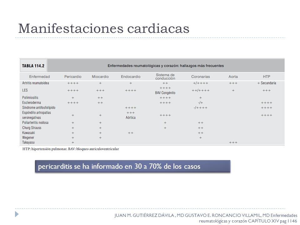 Manifestaciones cardiacas pericarditis se ha informado en 30 a 70% de los casos JUAN M. GUTIÉRREZ DÁVILA, MD GUSTAVO E. RONCANCIO VILLAMIL, MD Enferme