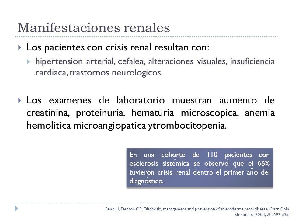 Manifestaciones renales Los pacientes con crisis renal resultan con: hipertension arterial, cefalea, alteraciones visuales, insuficiencia cardiaca, tr