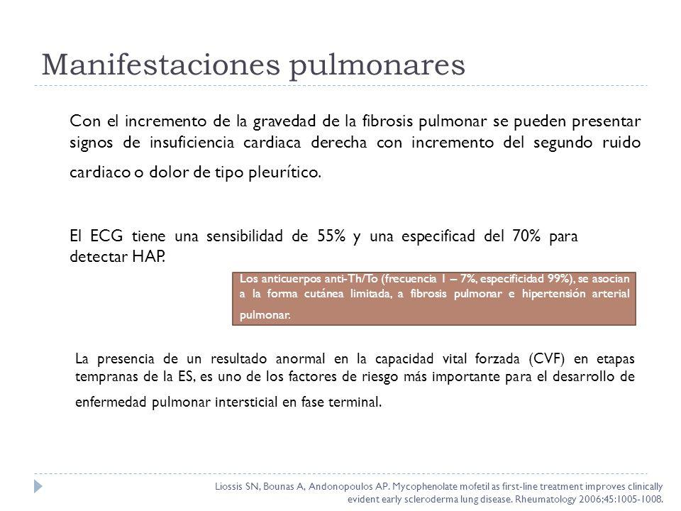 Con el incremento de la gravedad de la fibrosis pulmonar se pueden presentar signos de insuficiencia cardiaca derecha con incremento del segundo ruido