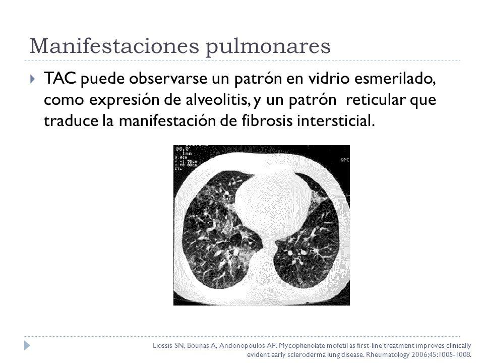 TAC puede observarse un patrón en vidrio esmerilado, como expresión de alveolitis, y un patrón reticular que traduce la manifestación de fibrosis inte