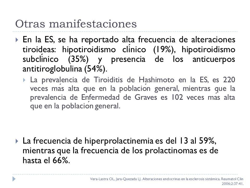 Otras manifestaciones En la ES, se ha reportado alta frecuencia de alteraciones tiroideas: hipotiroidismo clinico (19%), hipotiroidismo subclinico (35