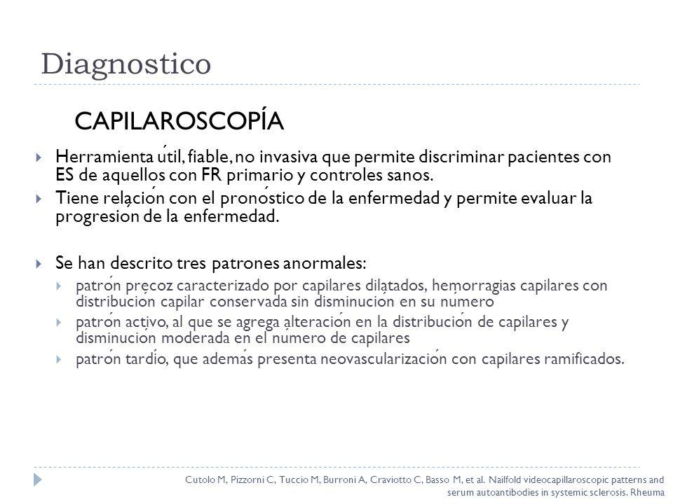 Diagnostico Herramienta util, fiable, no invasiva que permite discriminar pacientes con ES de aquellos con FR primario y controles sanos. Tiene relaci