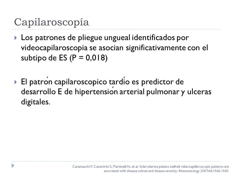 Capilaroscopía Los patrones de pliegue ungueal identificados por videocapilaroscopia se asocian significativamente con el subtipo de ES (P = 0,018) El