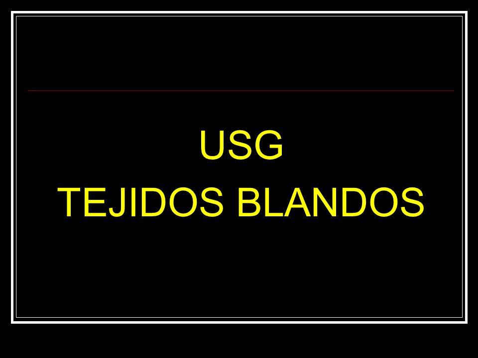 USG TEJIDOS BLANDOS