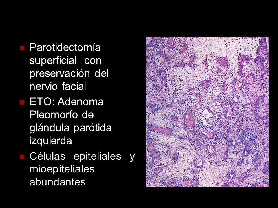 Parotidectomía superficial con preservación del nervio facial ETO: Adenoma Pleomorfo de glándula parótida izquierda Células epiteliales y mioepitelial
