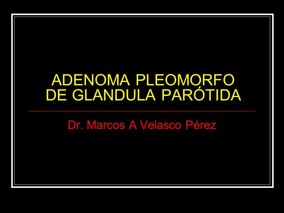 ADENOMA PLEOMORFO DE GLANDULA PARÓTIDA Dr. Marcos A Velasco Pérez