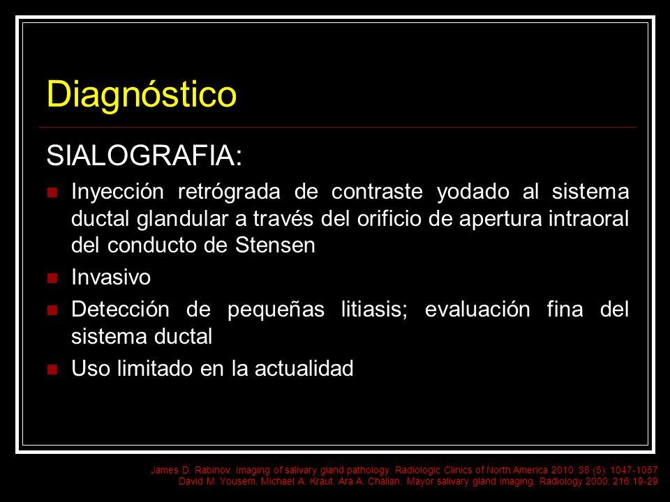 Diagnóstico SIALOGRAFIA: Inyección retrógrada de contraste yodado al sistema ductal glandular a través del orificio de apertura intraoral del conducto