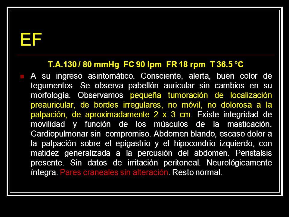 Bibliografia Journal of Cranio-Maxillofacial Surgery ( 2004 ) 32, 350 – 353 Cortés R.