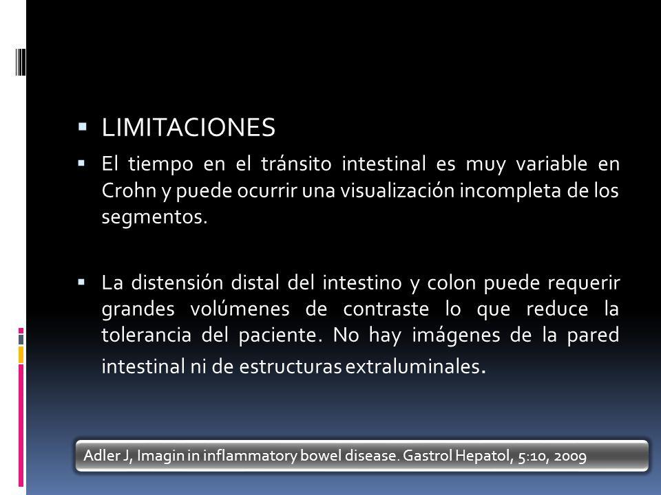LIMITACIONES El tiempo en el tránsito intestinal es muy variable en Crohn y puede ocurrir una visualización incompleta de los segmentos. La distensión