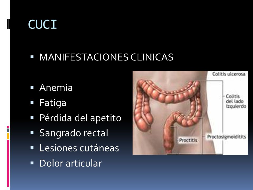 CUCI MANIFESTACIONES CLINICAS Anemia Fatiga Pérdida del apetito Sangrado rectal Lesiones cutáneas Dolor articular