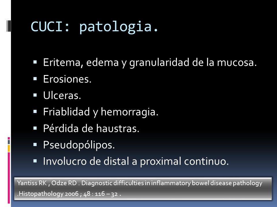 CUCI: patologia. Eritema, edema y granularidad de la mucosa. Erosiones. Ulceras. Friablidad y hemorragia. Pérdida de haustras. Pseudopólipos. Involucr