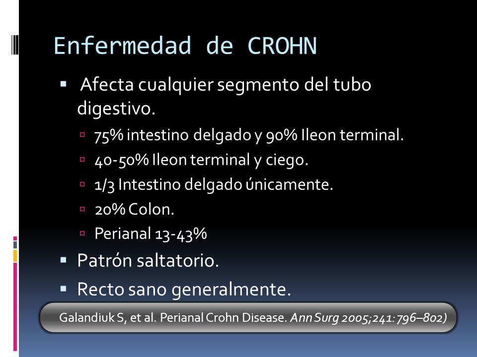Enfermedad de CROHN Afecta cualquier segmento del tubo digestivo. 75% intestino delgado y 90% Ileon terminal. 40-50% Ileon terminal y ciego. 1/3 Intes
