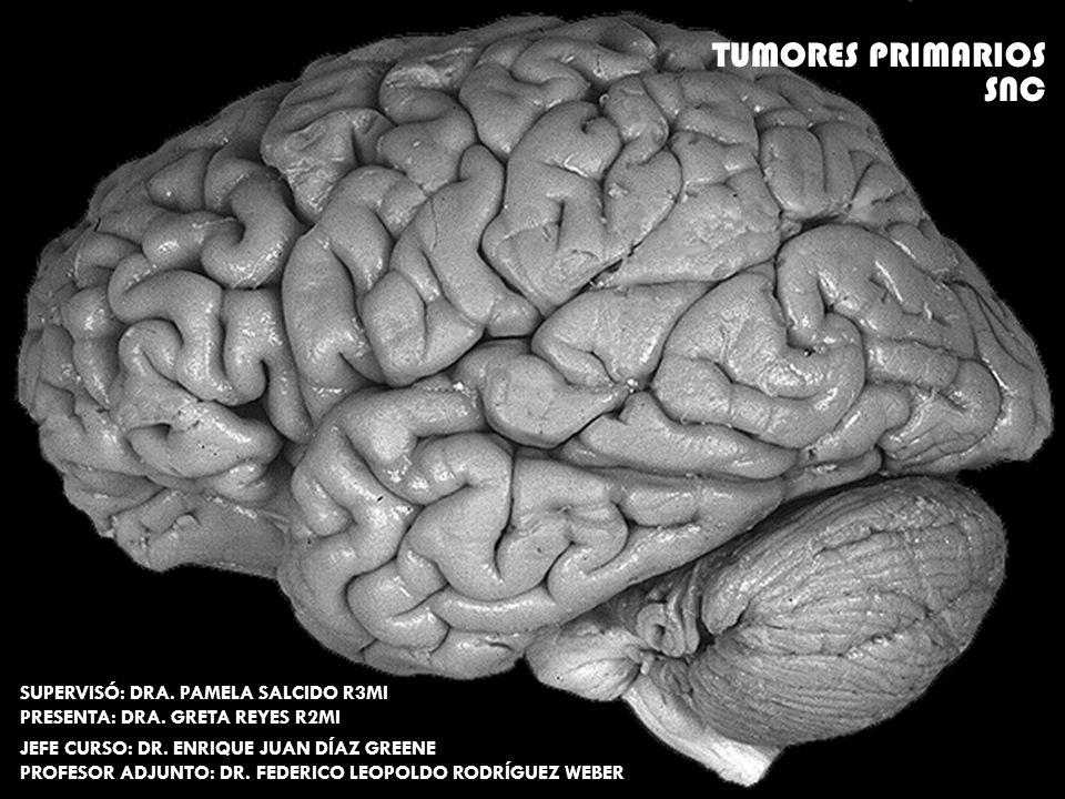 OLIGODENDROGLIOMAS Pronóstico: Pronóstico: Mejor que en astrocitomas en casi el doble de sobrevida ** única diferencia con resto de los gliomas.