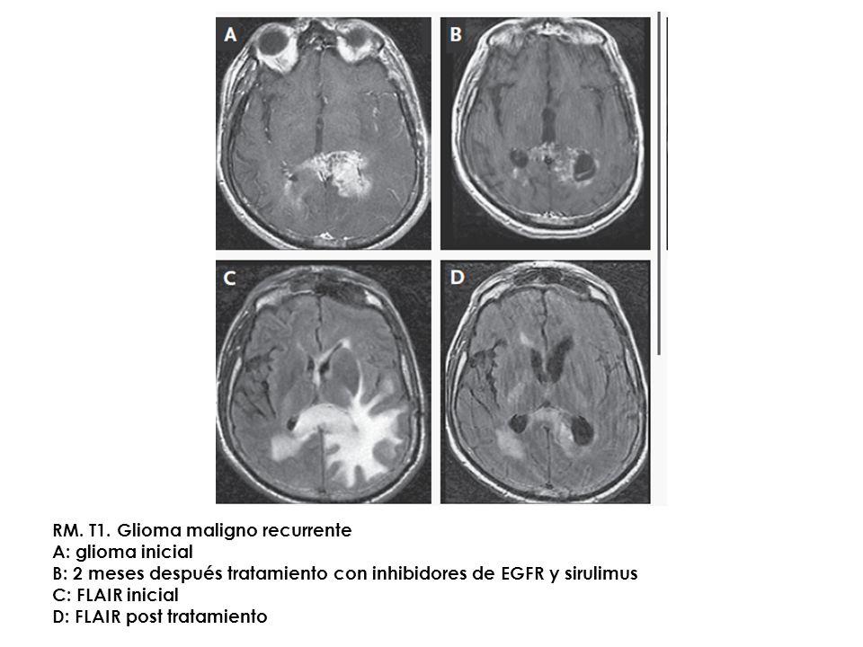 RM. T1. Glioma maligno recurrente A: glioma inicial B: 2 meses después tratamiento con inhibidores de EGFR y sirulimus C: FLAIR inicial D: FLAIR post