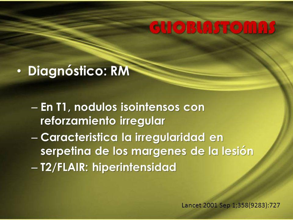 GLIOBLASTOMAS Diagnóstico: RM Diagnóstico: RM – En T1, nodulos isointensos con reforzamiento irregular – Caracteristica la irregularidad en serpetina