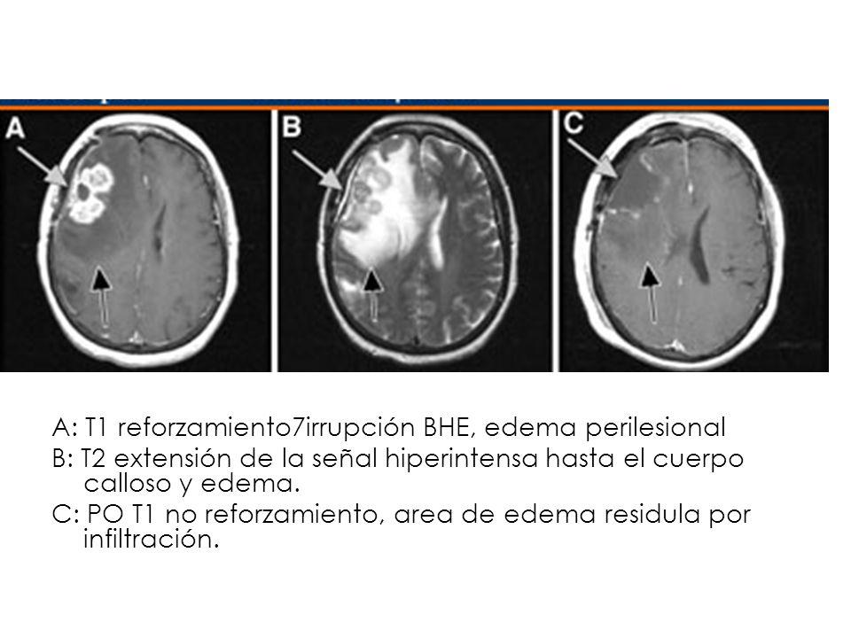 A: T1 reforzamiento7irrupción BHE, edema perilesional B: T2 extensión de la señal hiperintensa hasta el cuerpo calloso y edema. C: PO T1 no reforzamie