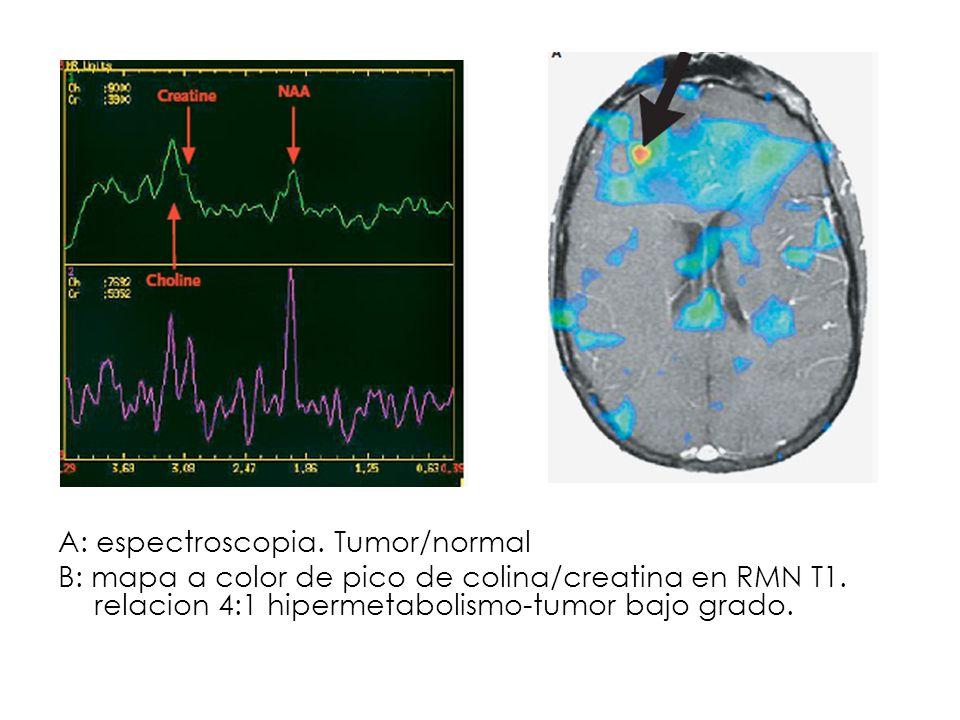 A: espectroscopia. Tumor/normal B: mapa a color de pico de colina/creatina en RMN T1. relacion 4:1 hipermetabolismo-tumor bajo grado.
