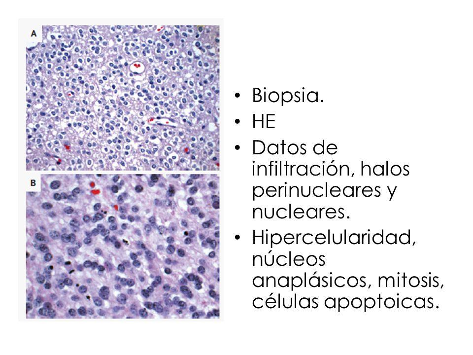 Biopsia. HE Datos de infiltración, halos perinucleares y nucleares. Hipercelularidad, núcleos anaplásicos, mitosis, células apoptoicas.