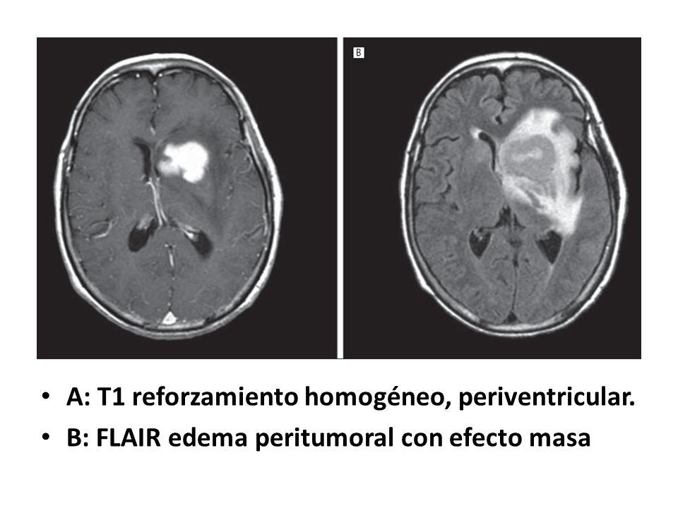 A: T1 reforzamiento homogéneo, periventricular. B: FLAIR edema peritumoral con efecto masa