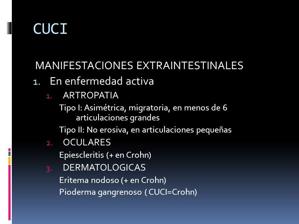 CUCI MANIFESTACIONES EXTRAINTESTINALES 1. En enfermedad activa 1. ARTROPATIA Tipo I: Asimétrica, migratoria, en menos de 6 articulaciones grandes Tipo
