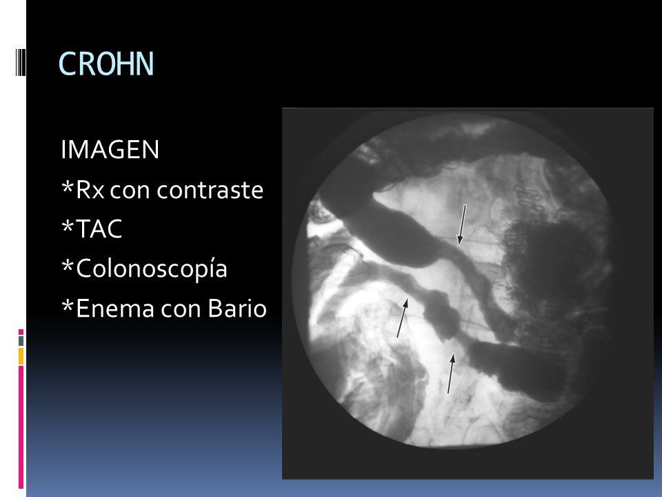 CUCI IMAGEN Endoscopía Leve: eritema, granulación, pérdida de la vascularidad, friabilidad Mod-Sev: ulceración y hemorragia espontánea Rx contrastada